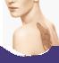Tetoválás eltávolítása